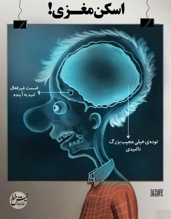 اسکن مغزی یک ایرانی در شرایط کنونی!