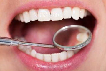 آیا چاقی بر خراب شدن دندان ها تاثیر می گذارد ؟